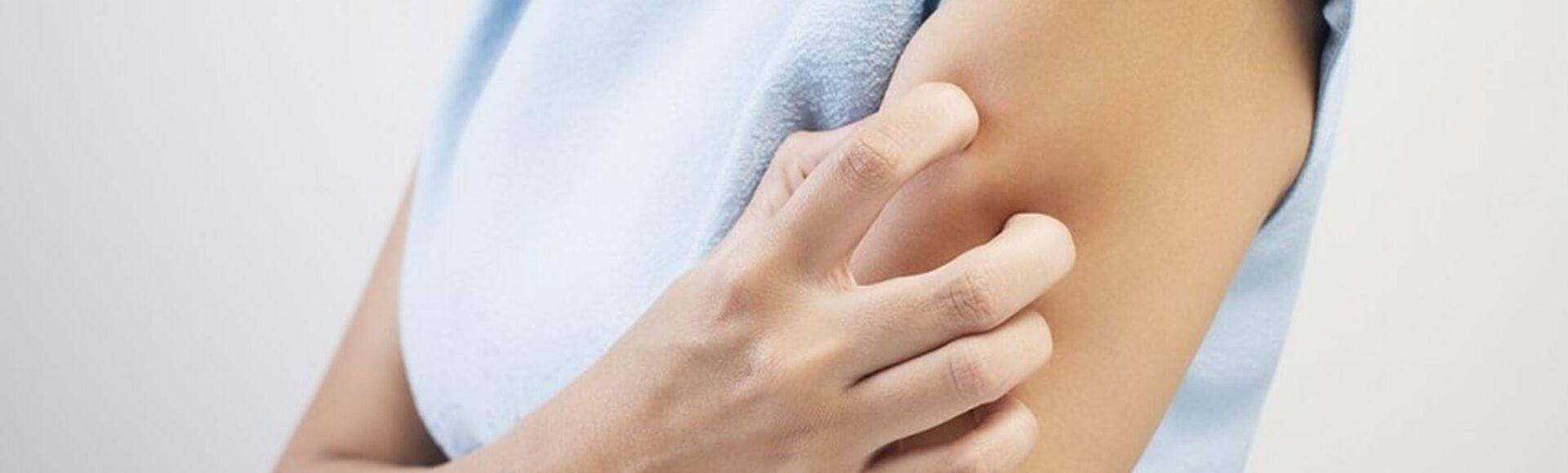 Tipos de urticária e urticária na gravidez