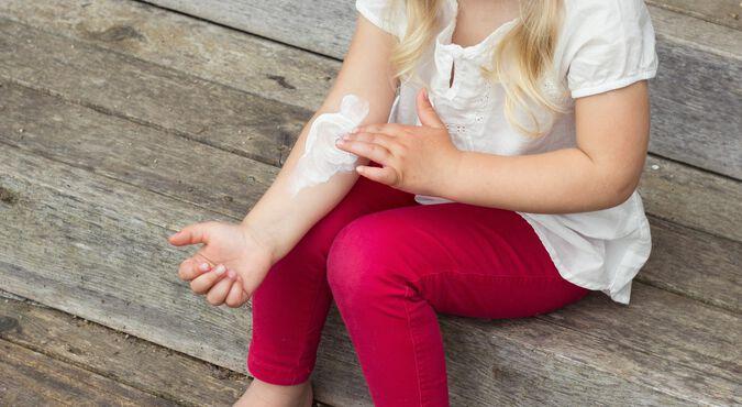 Pézinho de bebê com erupção cutânea vermelha  sintoma comum da dermatite atópica infantil